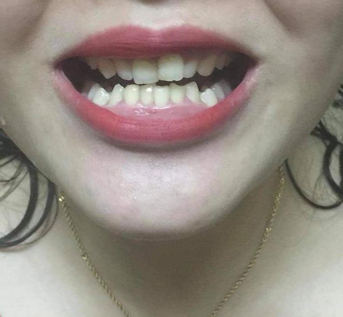 giá bọc răng sứ cần thơ