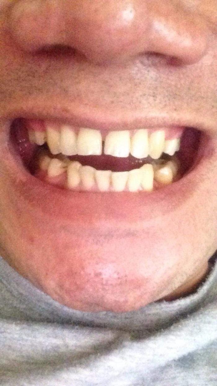 giá bọc răng sứ hải phòng