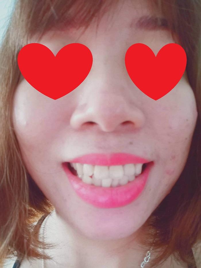 Răng sứ cercon khuyến mãi