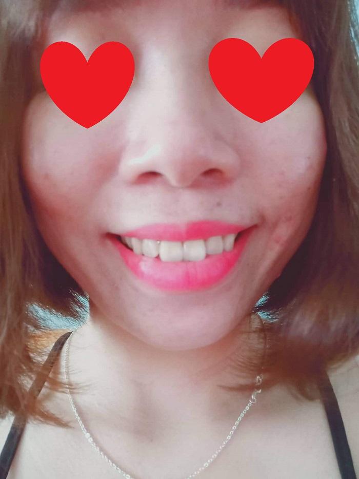giá bọc răng sứ lava 3m