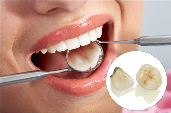 giá cả làm răng sứ Titan