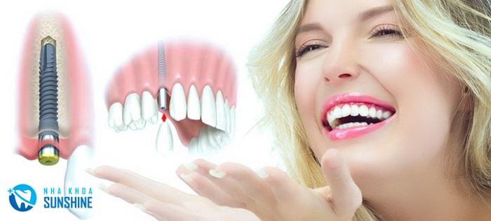 giá Implant Dentium Hàn Quốc