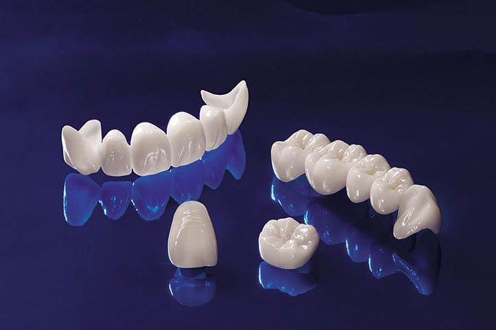 giá răng sứ giả