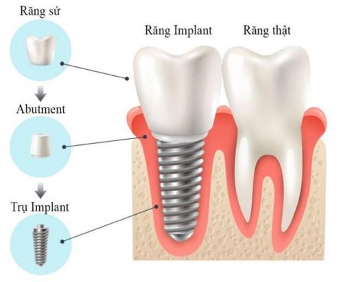 giá trồng 1 răng hàm