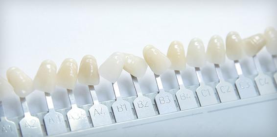 giá trồng răng giả tháo lắp
