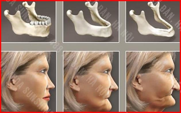 giá trồng răng hàm số 6
