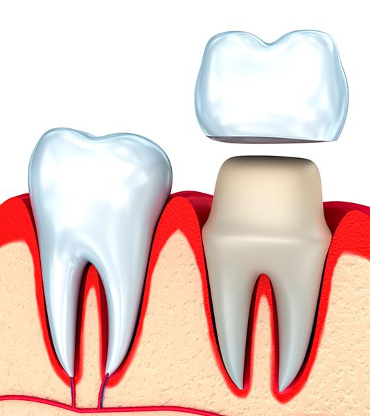 giá trồng răng sứ cần thơ
