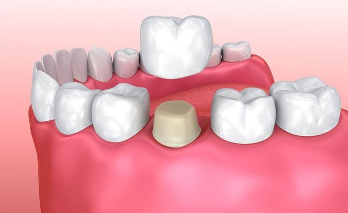 hôi miệng sau khi làm răng sứ