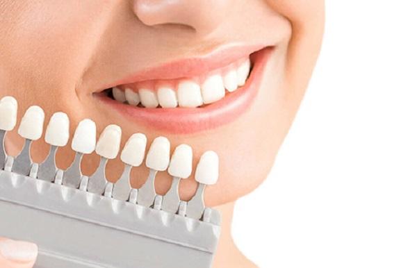 kinh nghiệm làm răng veneer