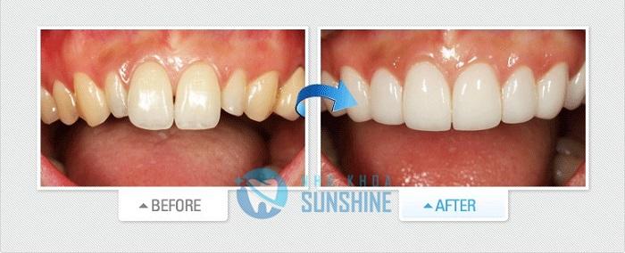 kinh nghiệm phủ răng sứ nano