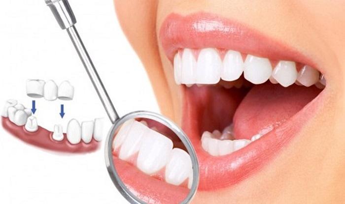 làm cầu răng sứ có đau không