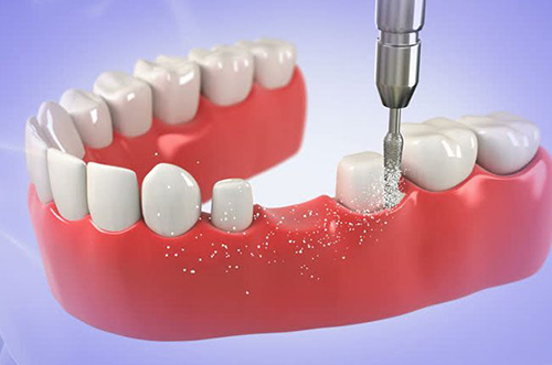 làm cầu răng sứ mất bao lâu
