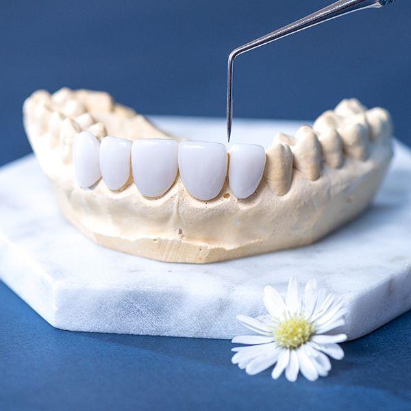 làm răng sứ 4 răng cửa