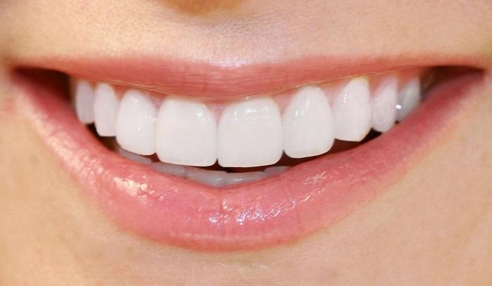 làm răng sứ bị hở