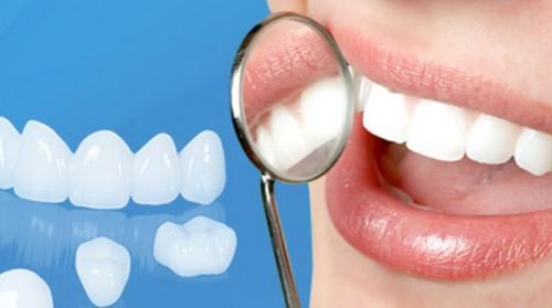làm răng sứ bị thâm nướu