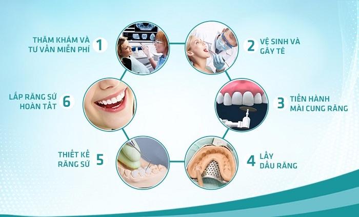 làm răng sứ bị tụt lợi