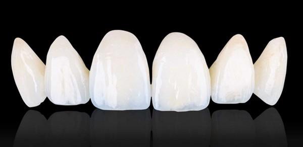 làm răng sứ chất lượng