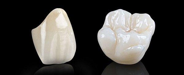 làm răng sứ có mấy loại