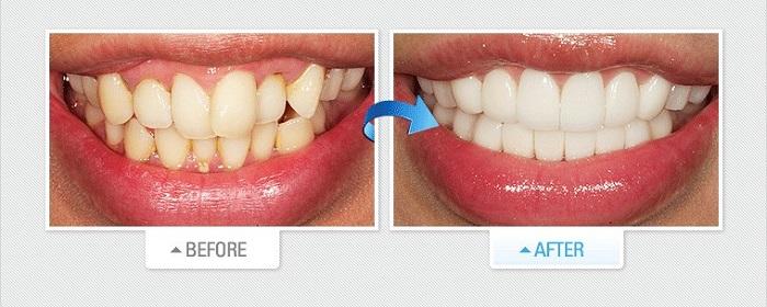 làm răng sứ dán