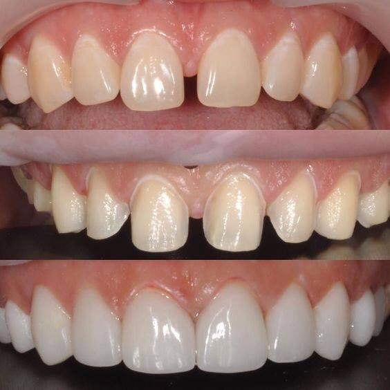 làm răng sứ giá rẻ hà nội