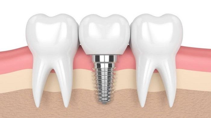 làm răng sứ implant