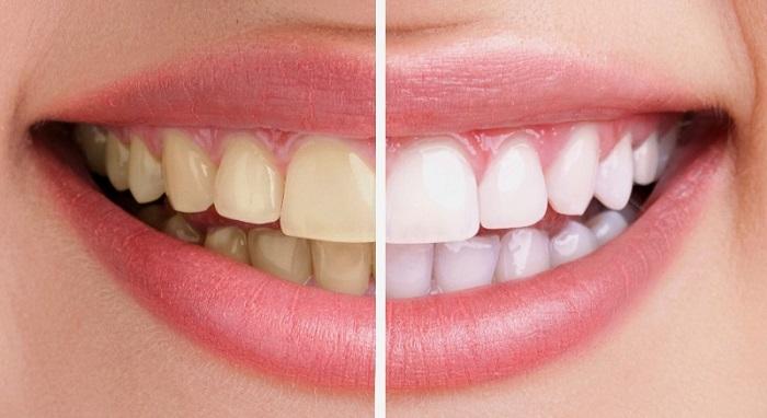 làm răng sứ lợi và hại