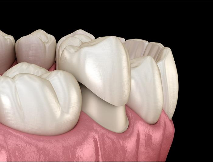 làm răng sứ mất bao nhiêu thời gian
