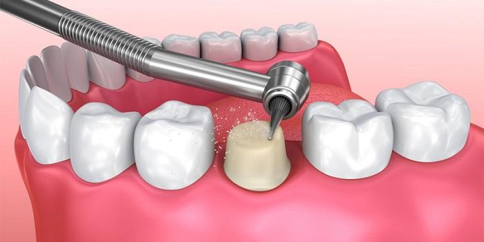làm răng sứ uy tín ở tphcm