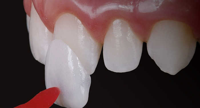 làm trắng răng bằng veneer