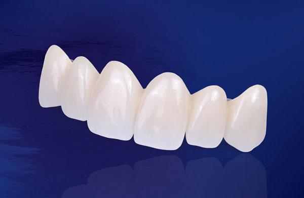 lợi ích của trồng răng sứ