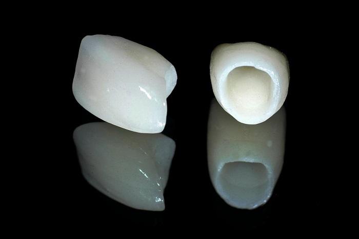 màu răng sứ đẹp nhất