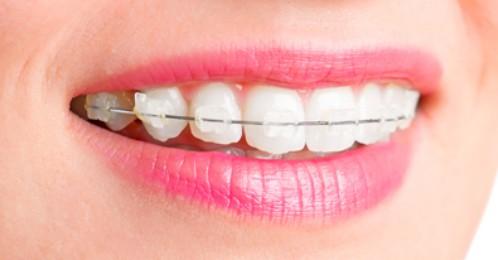nên niềng răng sứ hay kim loại