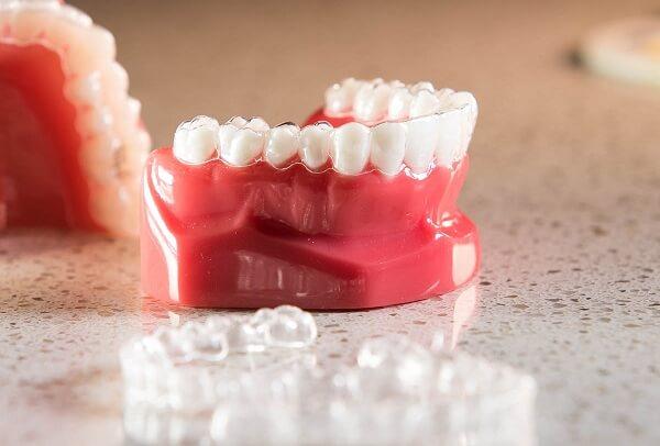 nẹp răng trong suốt giá bao nhiêu