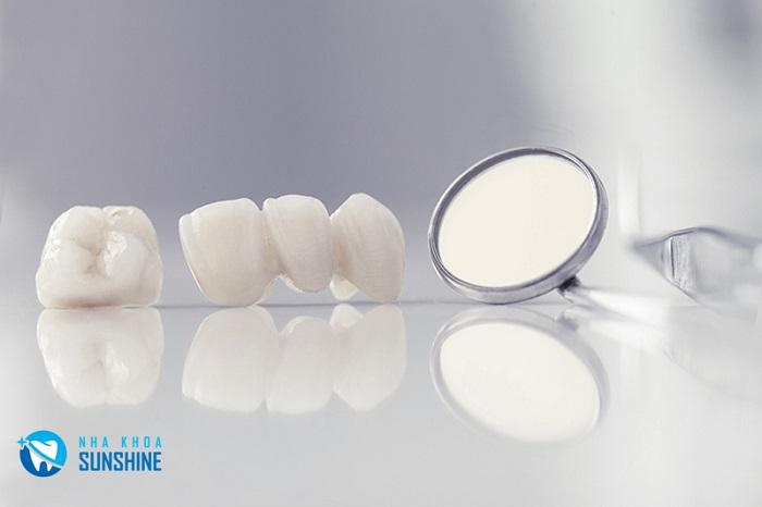 nha khoa bọc răng sứ đẹp