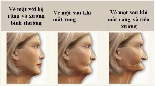 Nha Khoa chuyên Implant