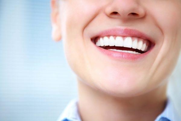 những hàm răng sứ đẹp
