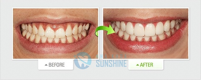 phủ răng sứ veneer giá bao nhiêu