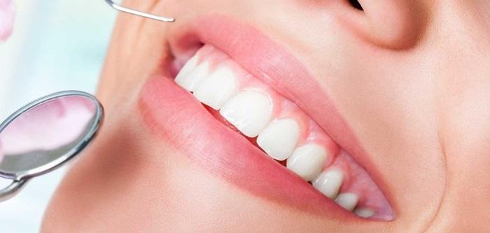 phục hình răng sứ Titan