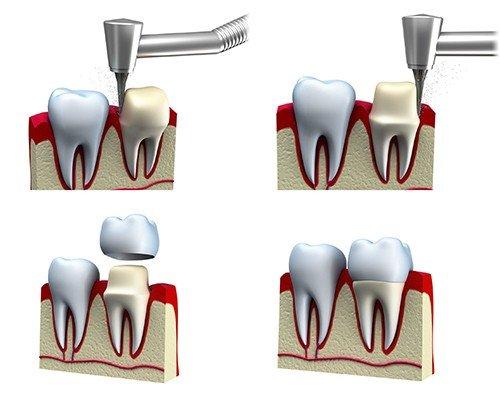 quy trình bọc răng sứ là gì