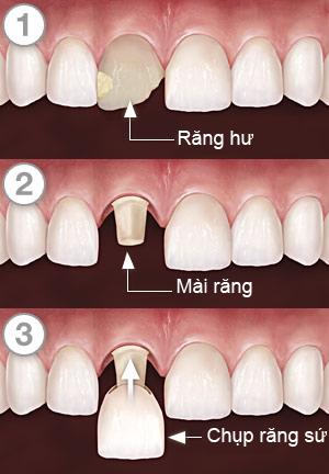 quy trình làm răng sứ mất bao lâu