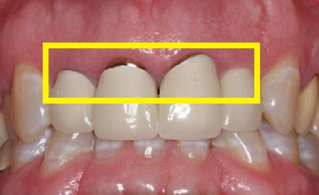 răng Titan có tốt không