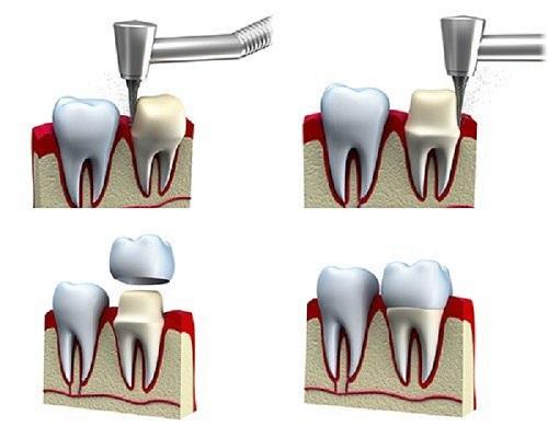 răng bị sâu có bọc sứ được không