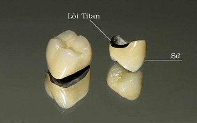 răng hàm sứ Titan
