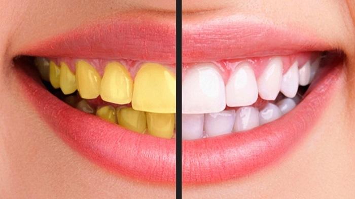 răng bọc sứ bị vàng