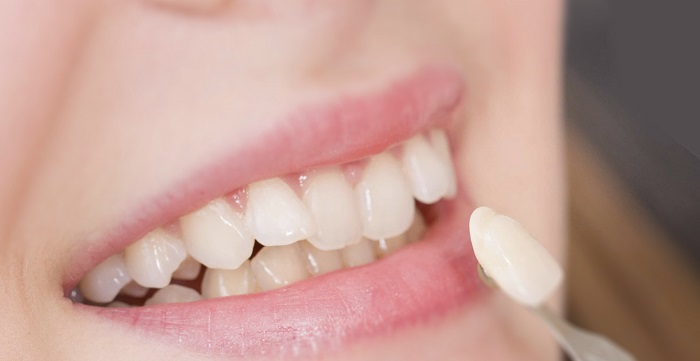 răng phủ sứ nano là gì