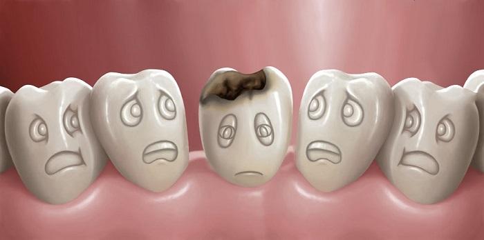 răng sâu bọc sứ bị đau