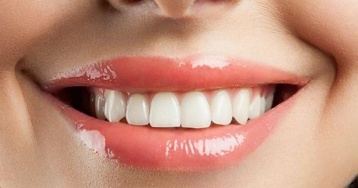Răng sứ Alumina giá bao nhiêu