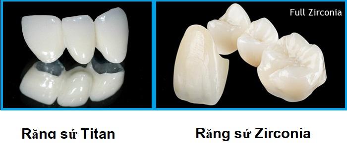 răng sứ Titan và răng sứ zirconia