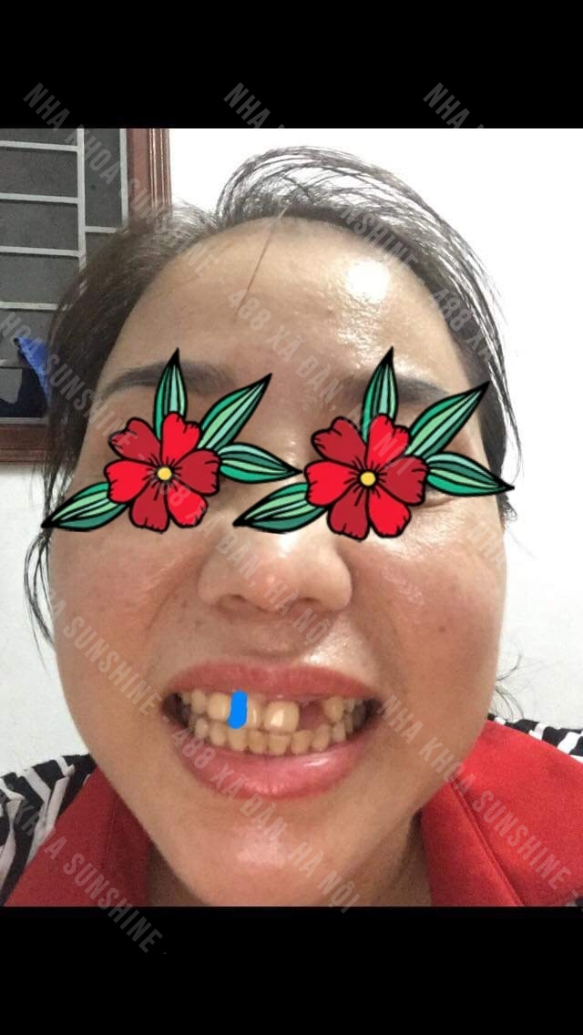 răng sứ bắt cầu