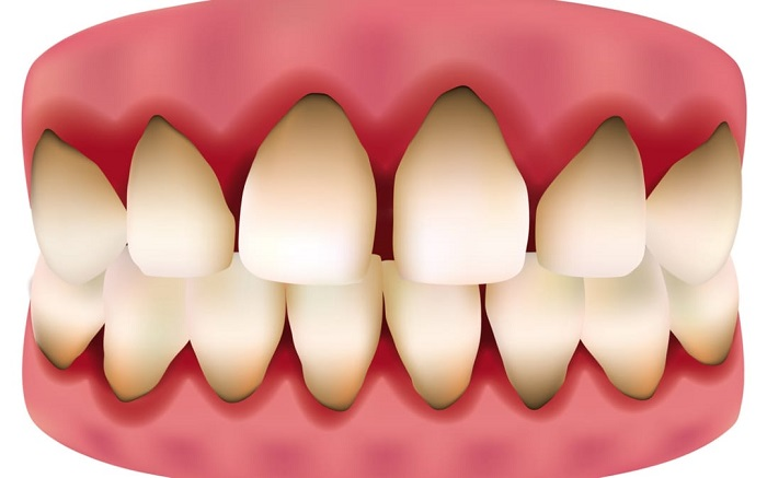 răng sứ cercon và titan
